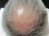 頭皮のビフォーの写真